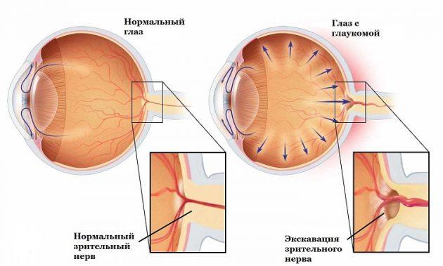 глаукома закритокутового типу