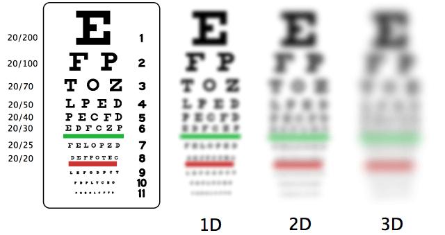 Степені міопії ока
