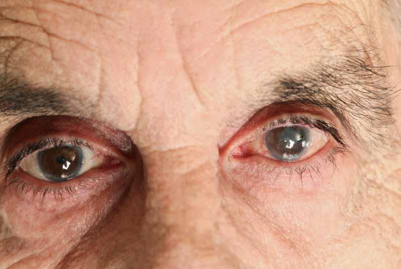 Небезпечні міфи о глаукомі