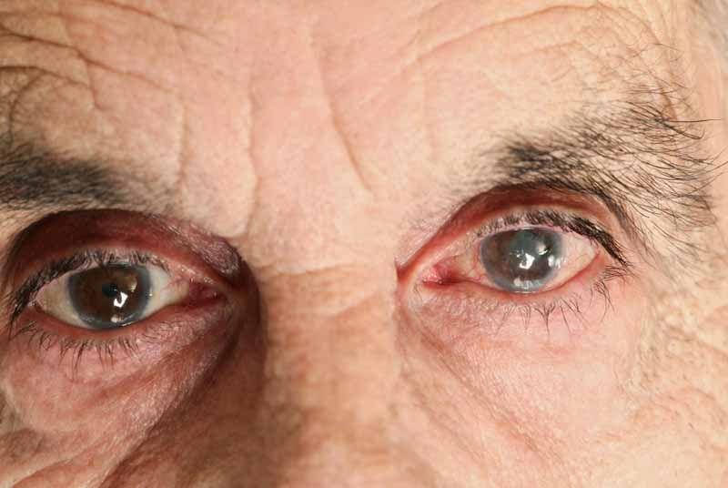 Опасные мифы о глаукоме