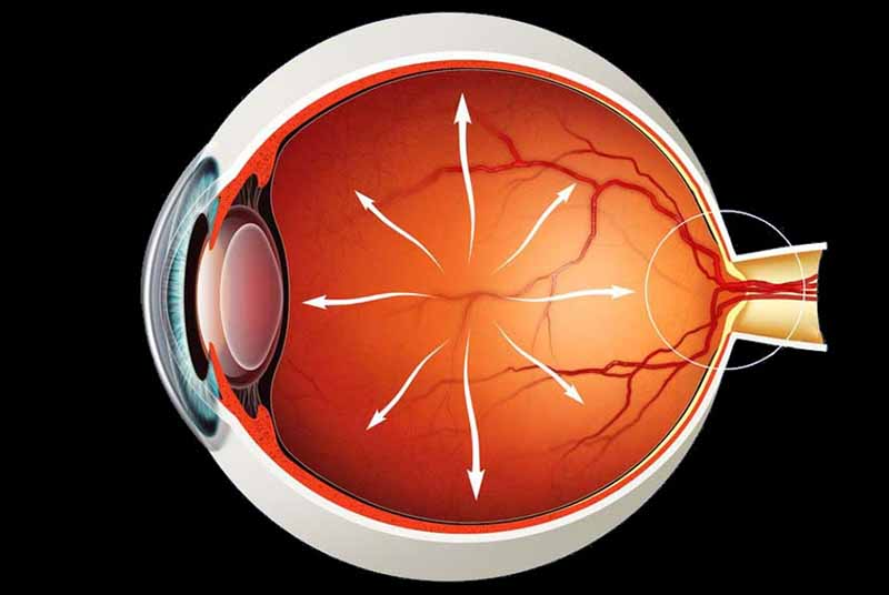 Як розпізнати глаукому ока?