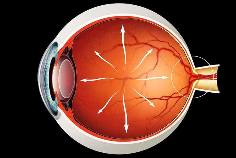 Как распознать глаукому глаза?