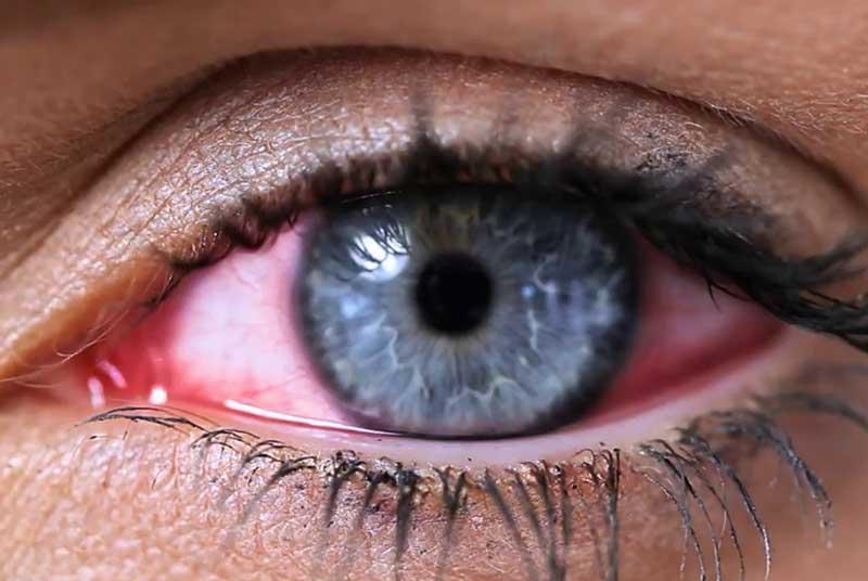Синдром «сухого ока». Лікування