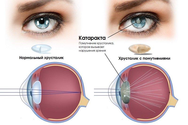 Методи лікування катаракти