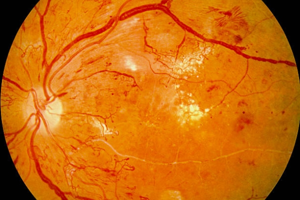 Чому при цукровому діабеті погіршується зір?